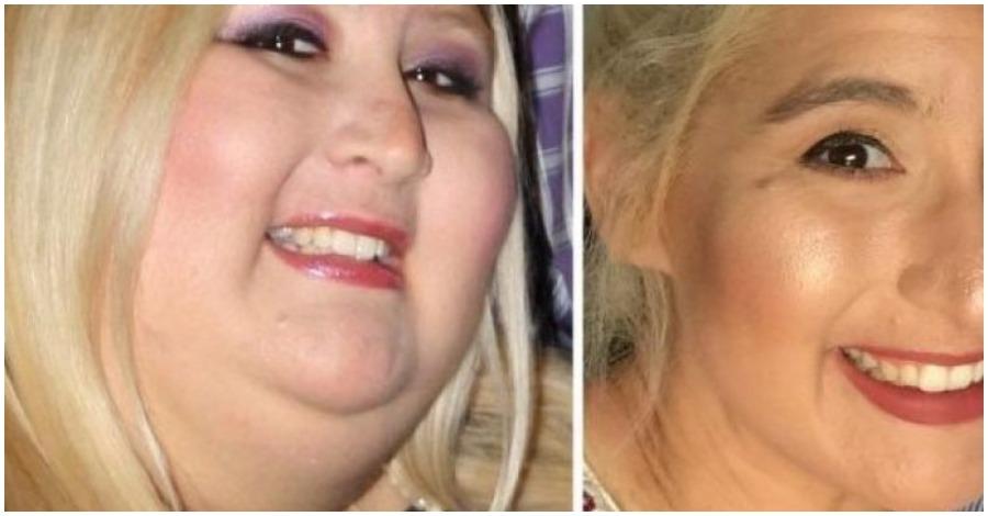 Έχασε 159 κιλά αλλά το αποτέλεσμα ήταν σοκαριστικό! 28