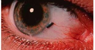 Ξένο σώμα στο μάτι. Τι πρέπει να κάνετε αν μπει κάτι στο μάτι σας; Πρώτες βοήθειες.