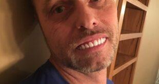 Fake δόντια που θα βελτιώσουν το χαμόγελό σας. Εσύ θα το έκανες;