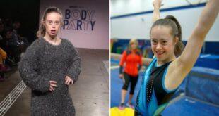 Πρωταθλήτρια ενόργανης με σύνδρομο Down γίνεται μοντέλο και εμπνέει κάθε γυναίκα