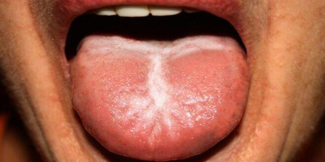 Τι θέμα υγείας δείχνει το λευκό επίχρισμα στη γλώσσα