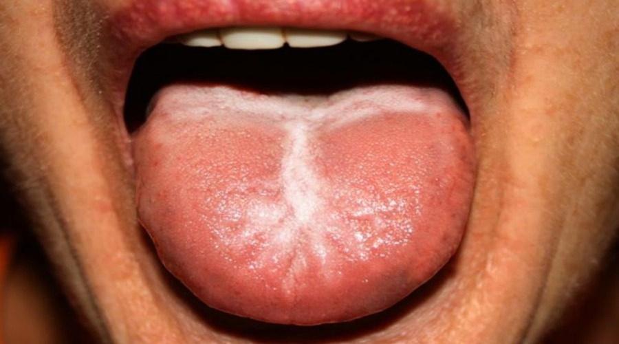 Τι θέμα υγείας δείχνει το λευκό επίχρισμα στη γλώσσα 1