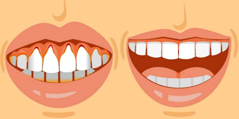 Πέτρα στα δόντια: 10 φυσικοί τρόποι για να την εξαφανίσετε 1