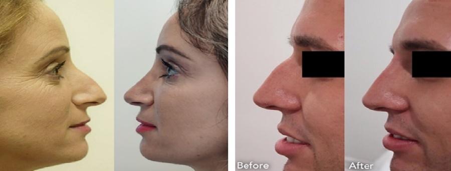 Για μια όμορφη μύτη, εμπιστευτείτε τον ειδικό! 2