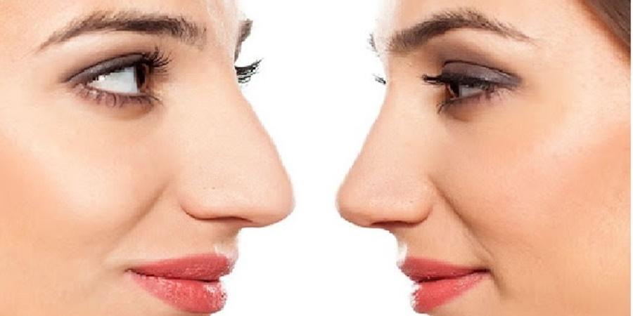 Για μια όμορφη μύτη, εμπιστευτείτε τον ειδικό! 1