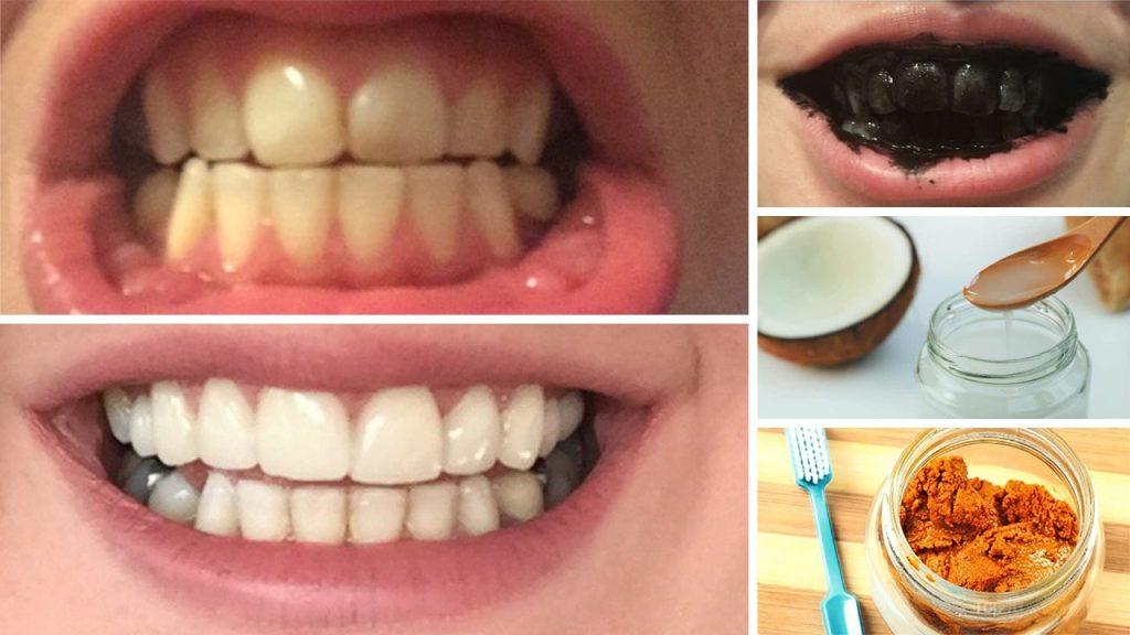 8 φυσικοί τρόποι για λεύκανση δοντιών στο σπίτι σε 3 λεπτά 1
