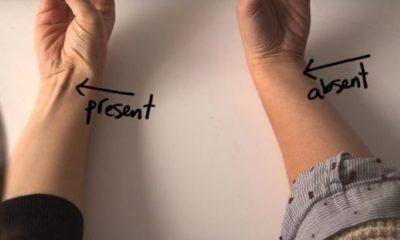 Κάντε έτσι τα δάχτυλά σας: «Πετάγεται» αυτός ο μυς; Δείτε τι σημαίνει… (vid) 1
