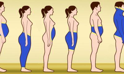 Οι 6 διαφορετικοί τύποι παχυσαρκίας, τι τους προκαλεί και πώς να τους αντιμετωπίσεις 7