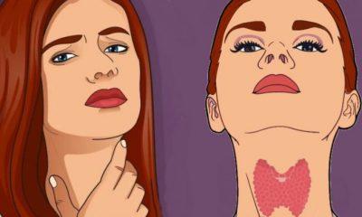 Νόσος Χασιμότο: 12 συμπτώματα που δείχνουν πρόβλημα στον θυρεοειδή – Ποιοι κινδυνεύουν περισσότερο 22
