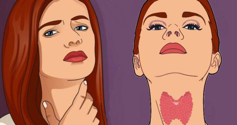 Νόσος Χασιμότο: 12 συμπτώματα που δείχνουν πρόβλημα στον θυρεοειδή – Ποιοι κινδυνεύουν περισσότερο 16