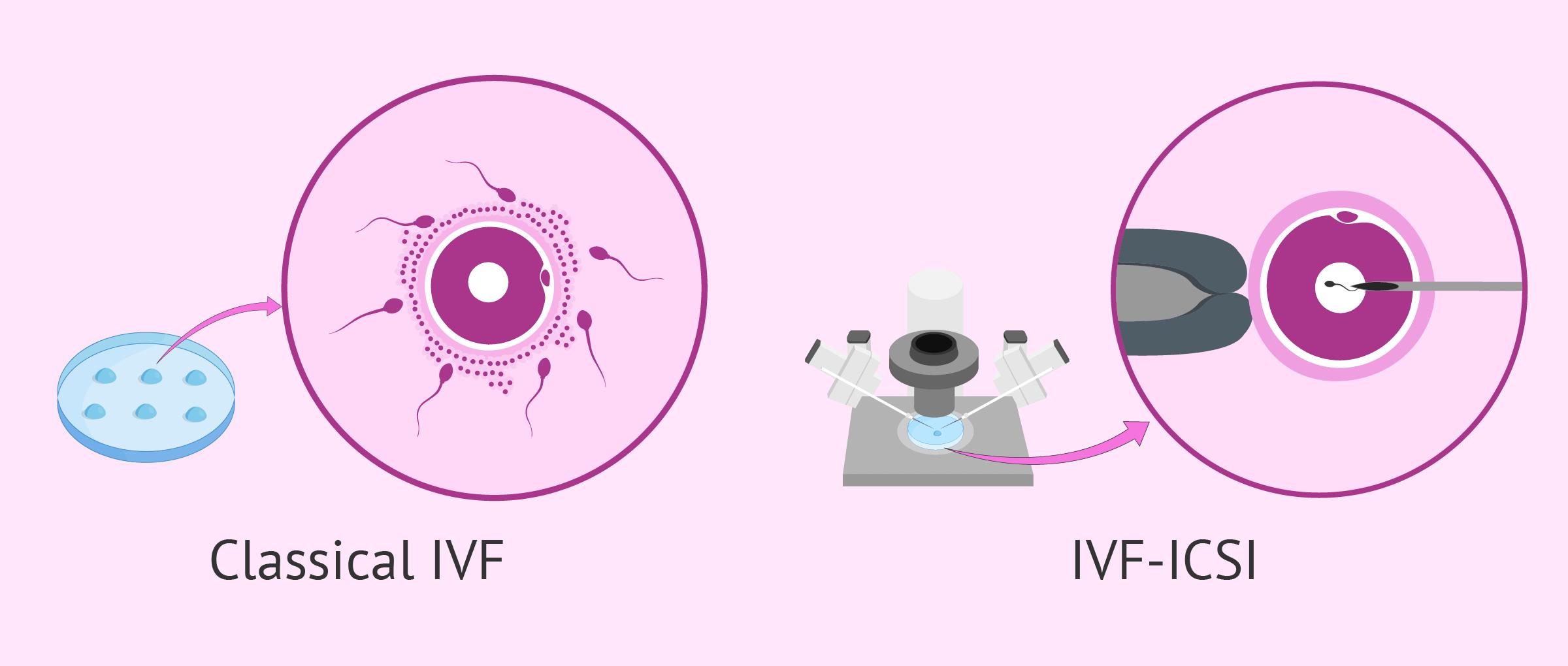 Μικρογονιμοποίηση και εμβρυομεταφορά: Η εξωσωματική γονιμοποίηση βήμα βήμα 15